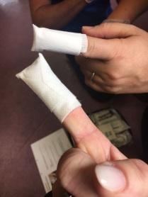 Fingerkuppenverbände... Beherrschen wir perfekt!